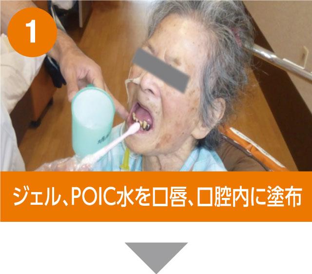 1. ジェル、POIC水を口唇、口腔内に塗布