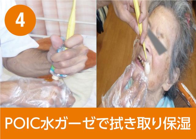 4. POIC水ガーゼで拭き取り保湿
