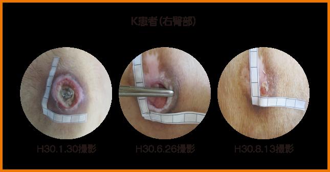 K患者(右臀部) H30.1.30撮影 H30.6.26撮影 H30.8.13撮影