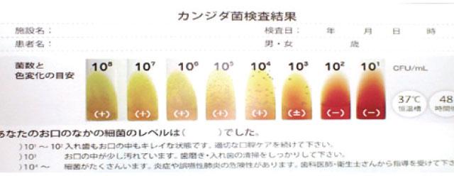 カンジタ菌検査:口腔内上皮を採取し恒温槽で48時間培養後、カンジタ菌のコロニー状態を判定