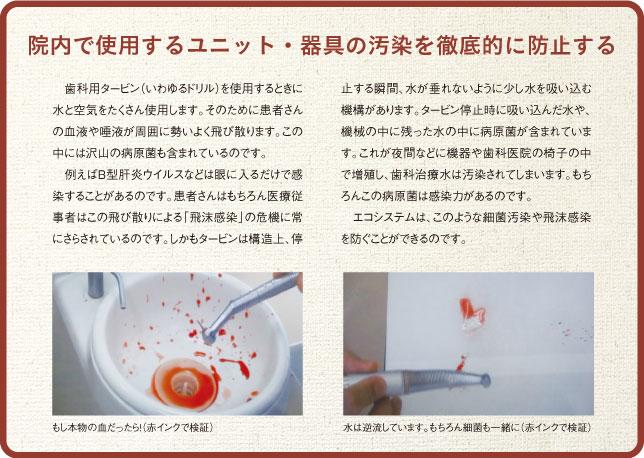 タービン(歯を削る道具)の水の仕組み